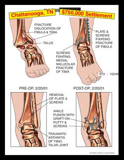 ankle fracture dislocation fibula, tibia, talus, foot, ORIF, screws, plate malleolar, malleolus, traumatic, arthritis, fusion, bone graft grafton