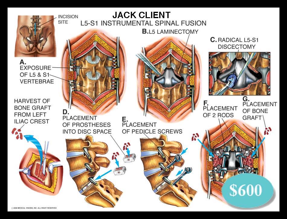 Lumbar, spinal, fusion, L5-s1, cage, bone graft, pedicle, screws, rods, discectomy, vertebrae, laminectomy, facetectomy, foraminotomy, spine