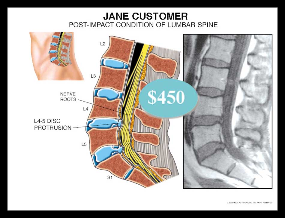 Lumbar, spine, disc, bulge, herniation, MRI, nerve roots, impingement, thecal, nucleus, annulus, annular tear, radiculopathy, vertebrae protrusion