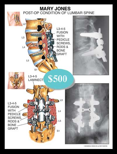 lumbar, spine, spinal, fusion, vertebrae, pedicle, screws, rods, bone graft, xray, laminectomy, compression, fracture, thecal, nerve roots