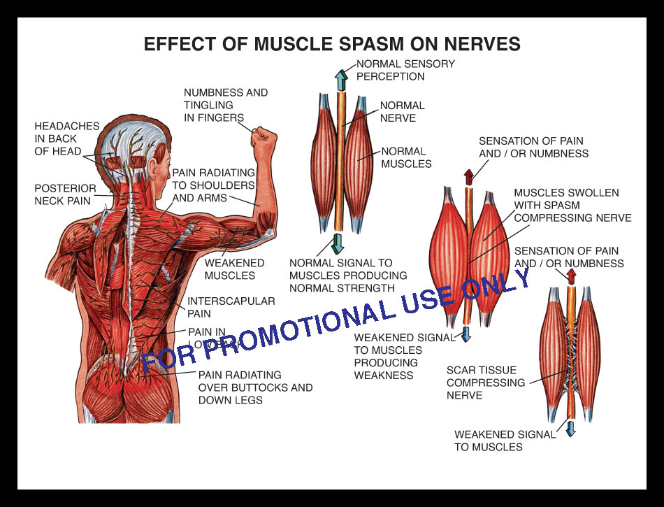 muscle spasm, head, neck, back, nerve, sprain, strain radiculopathy