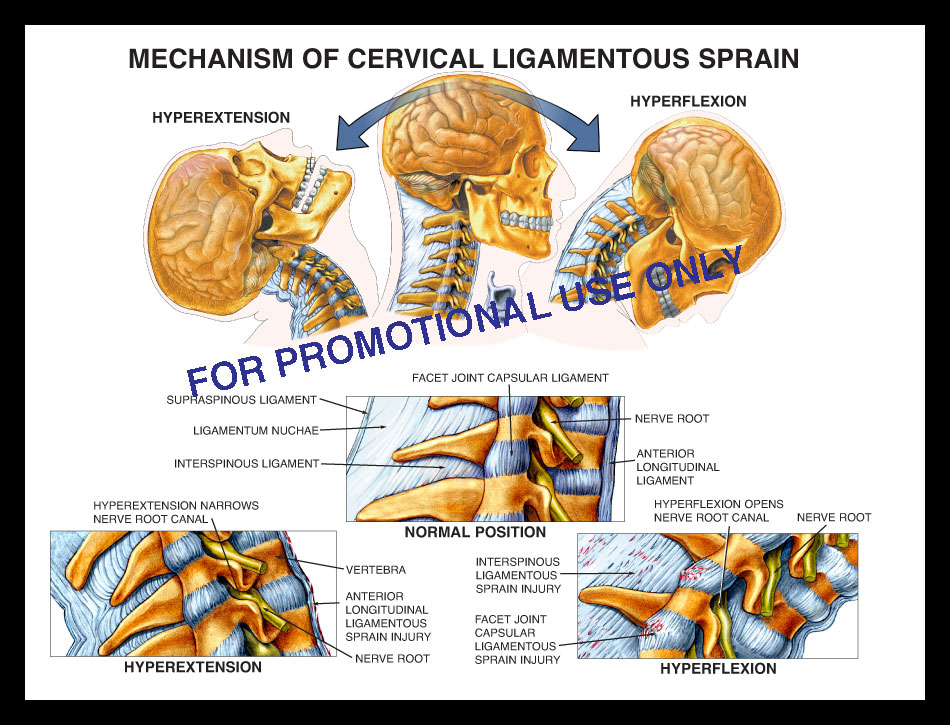cervical, ligament, sprain, strain, soft tissue, nerve root, facet joint spine, vertebrae