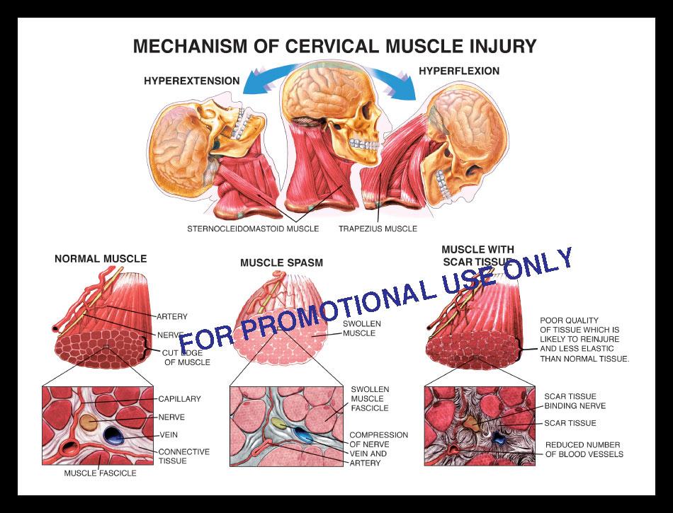 cervicale, muscle, soft tissue, myofascitis, scar tissue, spasm, edema, swollen, verve fascicle