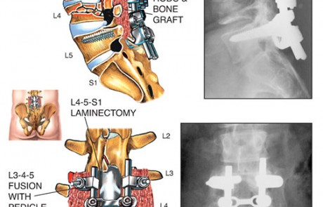 19.580 Million Settlement 2, 800V9-2, lumbar, spine, spinal fluid, vertebrae, pedicle, screws, rods, bone graft, x-ray, laminectomy, compression, fracture, thecal, nerve roots