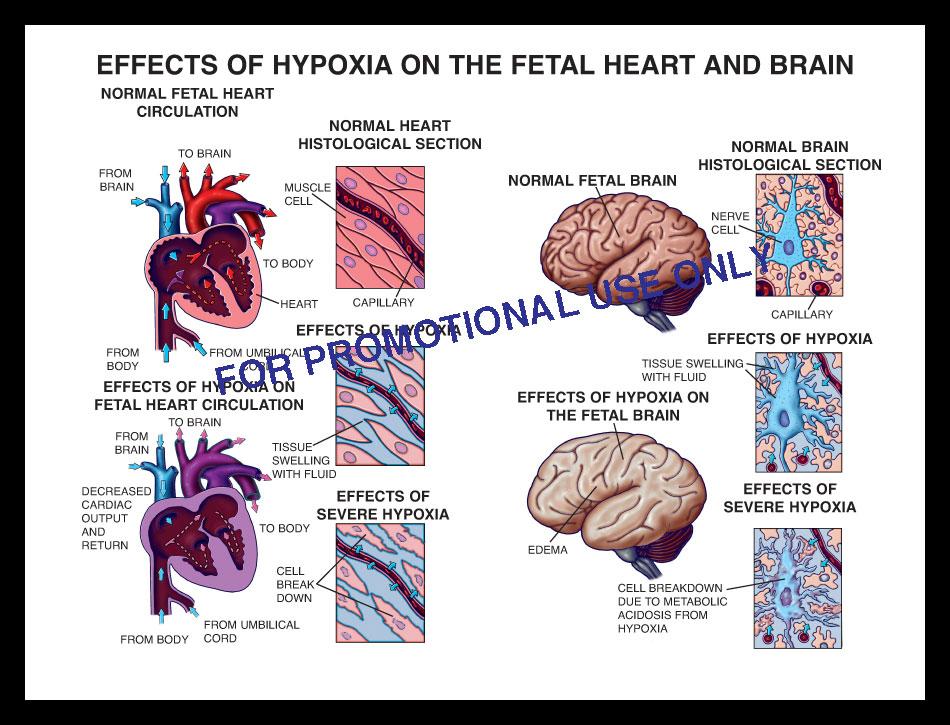 hypoxia, hypoxic brain injury, fetal, baby, fetus, heart, ischemic, ischemia, infarct