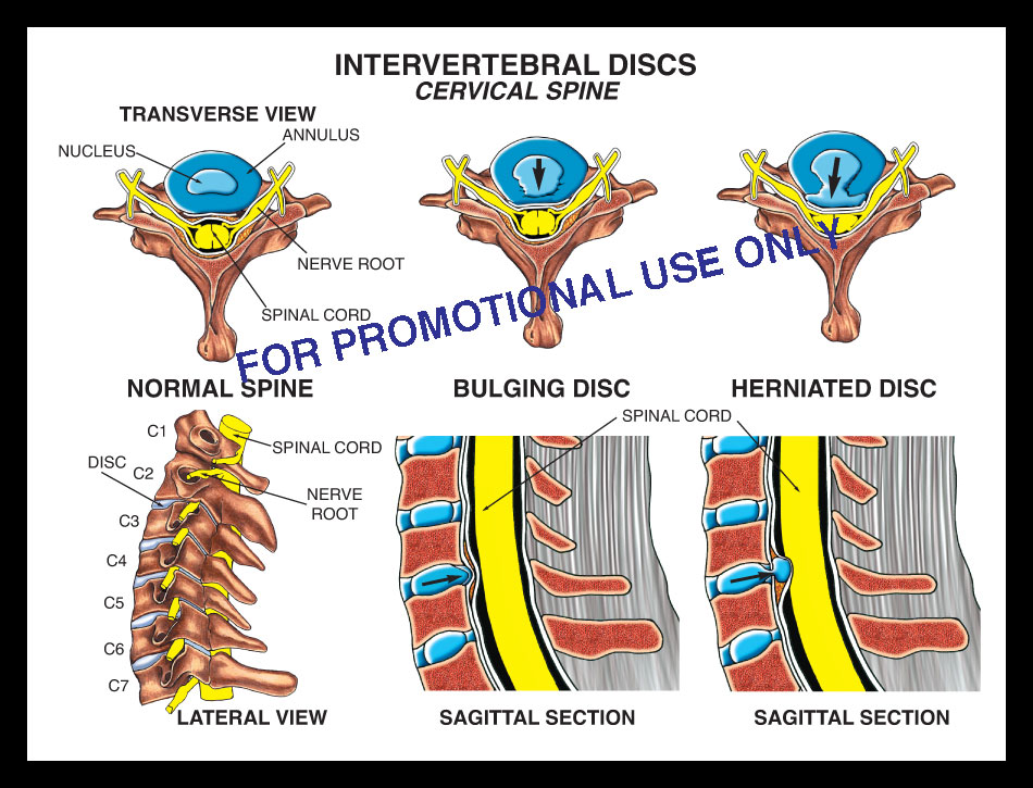 cervical, spine, vertebrae,  neck, disc, bulge, herniation, protrusion, spinal cord, nerve root, nucleus, annulus, thecal sac, axial, sagittal, herniated annular tear