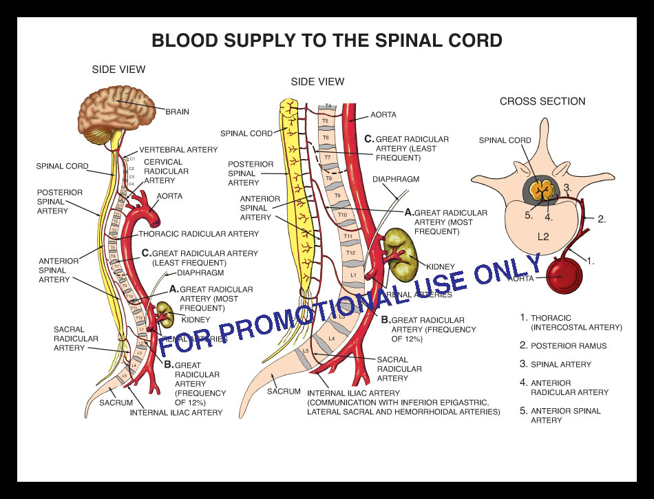 spinal cord, artery, blood supply spine, vertebrae, paralysis, paraplegic aorta