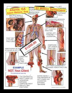 multiple injury facial, open fractures, lacerations, humeral, humerus, femoral, femur rib, clavicle tibia, fibula