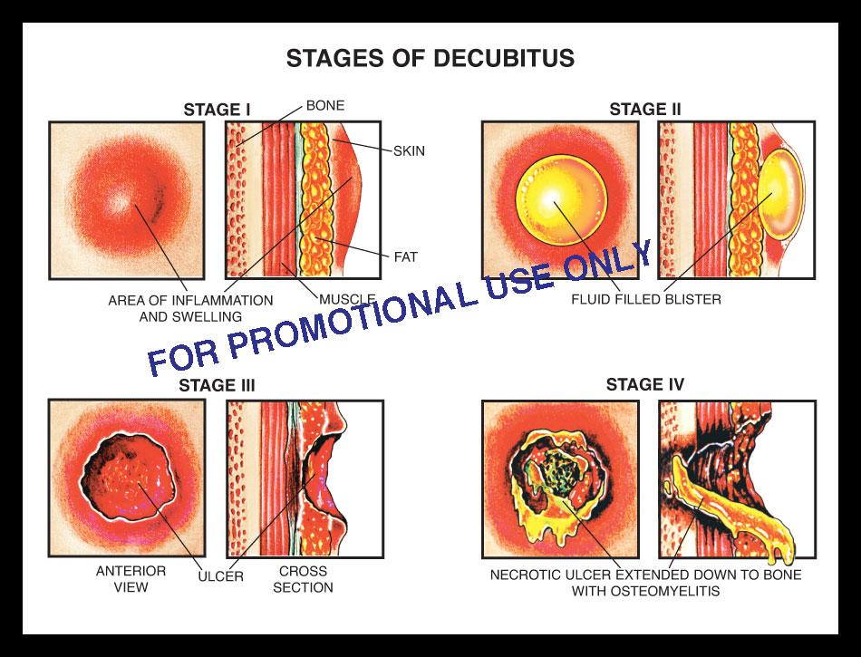 stage decubitus I, II, II, VI, 1, 2, 3, 4 pressure ulcer bed sore blister, skin, soft tissue, fascia, bone, necrotic, osteomyelitis