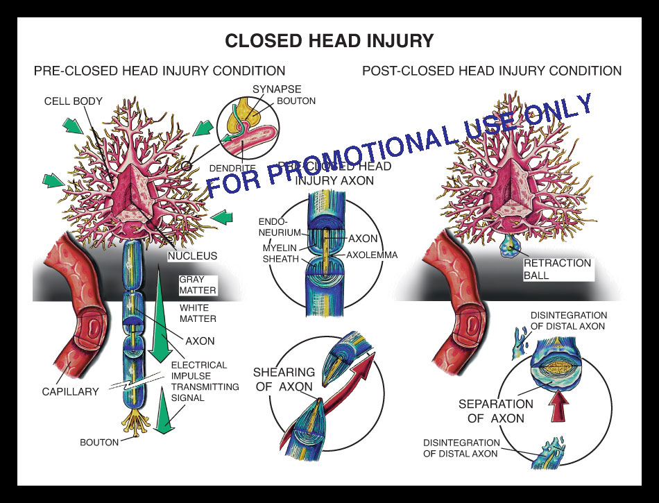 closed, head, brain, injury, axon, mild, shearing, nerve, synapse