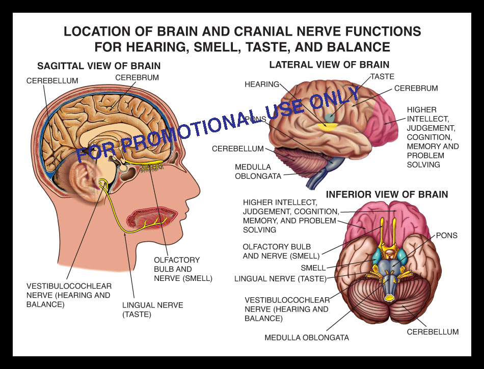TBI, closed head, brain, injury, cranial, nerve, function hearing, smell, taste, balance, olfactory, lingual, vestibulocochlear