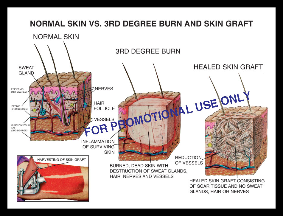 skin, burn depth, 3rd degree, epidermis, dermis, sensory nerve, scar tissue, graft, harvest