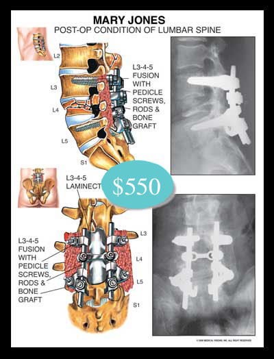 Lumbar, spinal, spinal, fusion, vertebrae, pedicle, screws, rods, bone graft, xray, laminectomy, compression, fracture, thecal, nerve roots