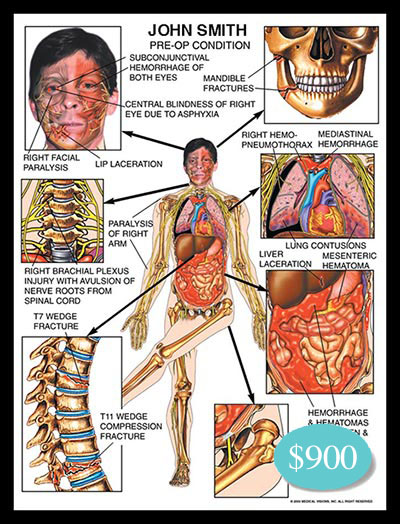 hemorrhage, facial paralysis, right arm, branchial plexus injury, avulsion nerve roots, spinal cord, wedge, fracture, compression, mandible, hemopneumothorax, pneumothorax, liver laceration, mesenteric hematoma, hip dislocation
